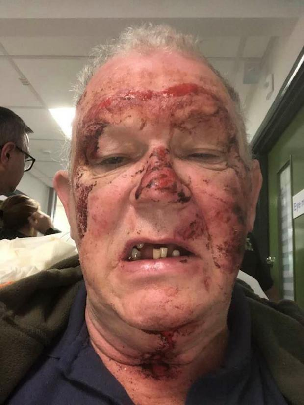 The Northern Echo: Brian Sowerby's facial injuries