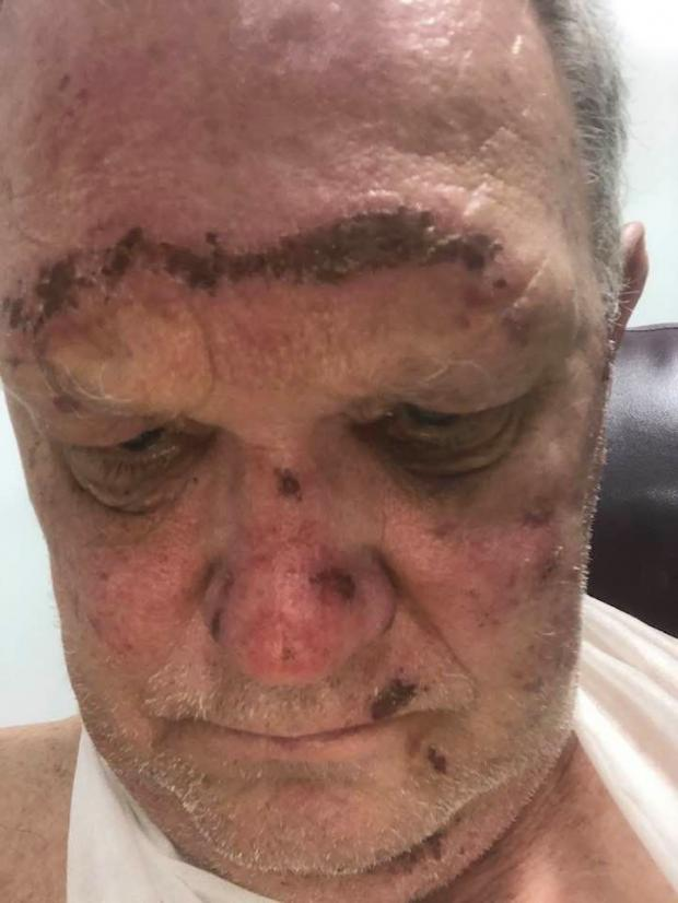 The Northern Echo: Mr Sowerby suffered a fractured jaw