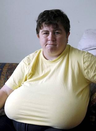 Huge breasts england