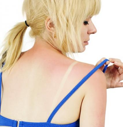Skin cancer rates soar in the North East as the search for the 'perfect tan' continues