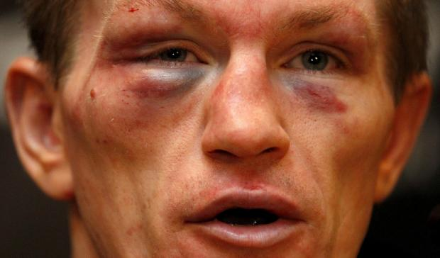 BEATEN MAN: Ricky Hatton shows the scars of battle in the aftermath of his one-off return to the ring on Saturday evening