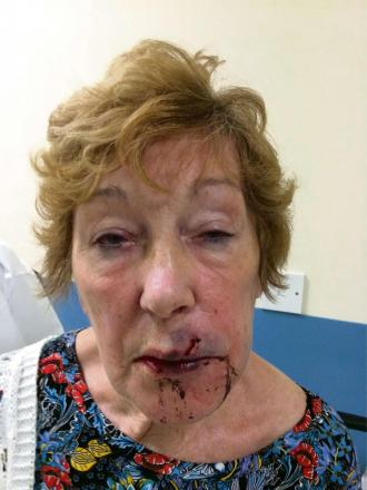 POLICE APPEAL: Robbery victim Anne Anstey