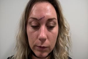 SCARRED: Kirsty Rustman, 30, who lives in Durham, was out celebrating a friend's birthday at Livello bar in Newcastle when she was attacked