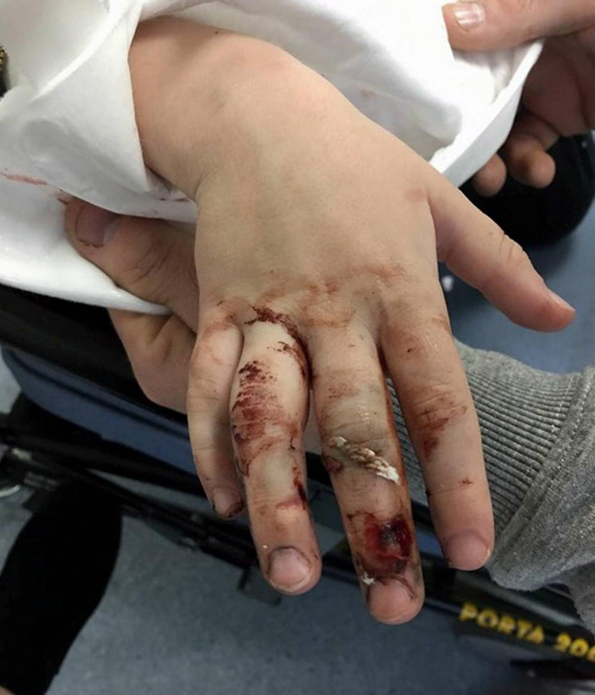 Young boy has lucky escape thanks to quick-thinking brother after ...