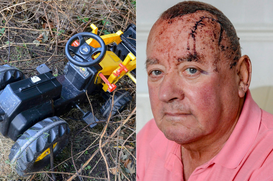 Alan Taylor, pictured on Monday, and the tractor that was pushed off the top of the underpass onto his head. Picture: North News