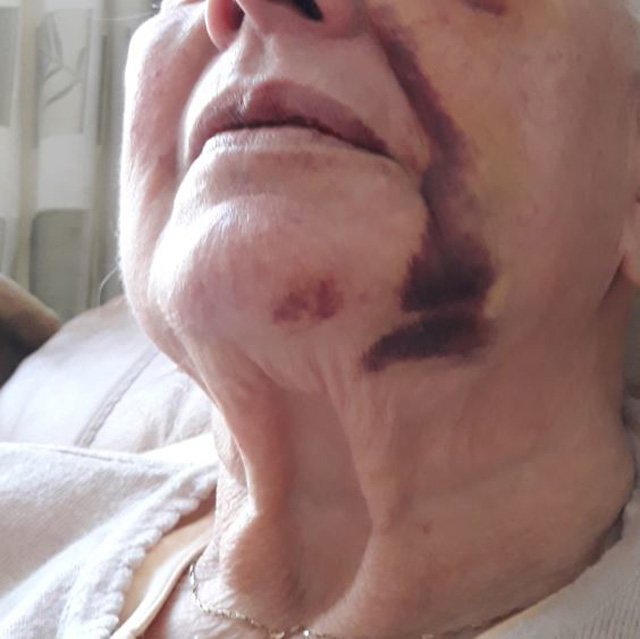 A 79-year-old woman was left with a fractured eye socket after being robbed in Gateshead. Picture: NORTHUMBRIA POLICE